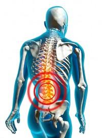 Keliau sunku svori nugaros skausmas