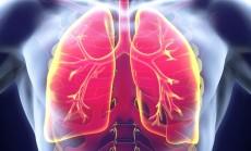 """""""plaučiai"""""""