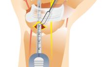 rieso_endoskopija