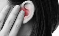 """""""ausų skausmas"""""""