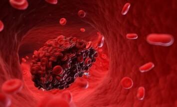 kraujo krešuliai